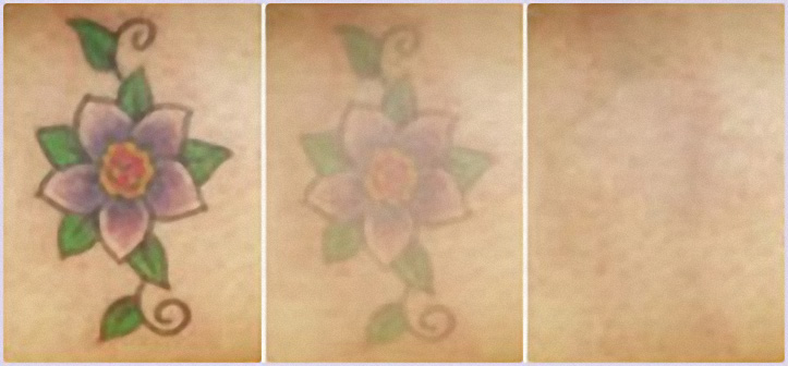 laser-tattoo-removal-pictures-(9)-1